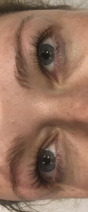 eyes with eye lashes lift